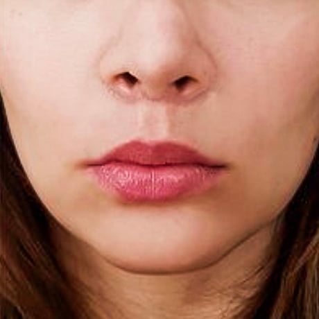 10-lip-fillers-fatigue-story-Po