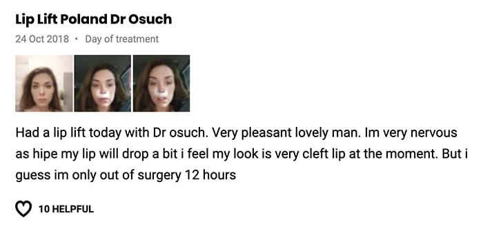 Lip lift klinika doktor Osuch opinie